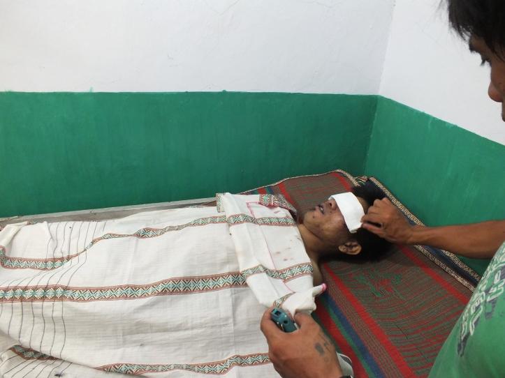 Korban dari penganiayaan yang dilakukan oleh anggota lapas