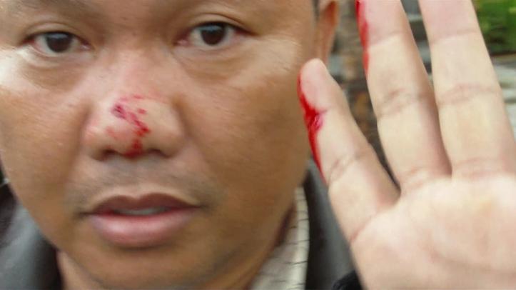 Korban kekerasan, wartawan Kawanua TV, Jefry Wuisan
